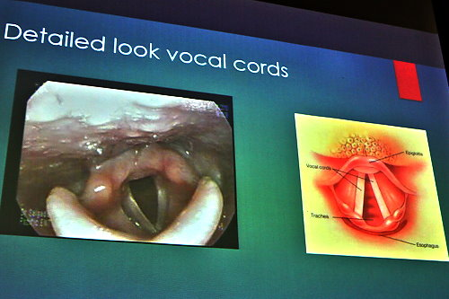 Detailed look at vocal cords